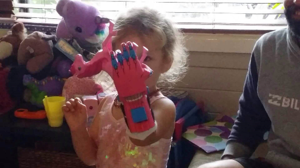 A recipient of one of Mat Bowtell's 3D-printed hands. (Image: Mat Bowtell)