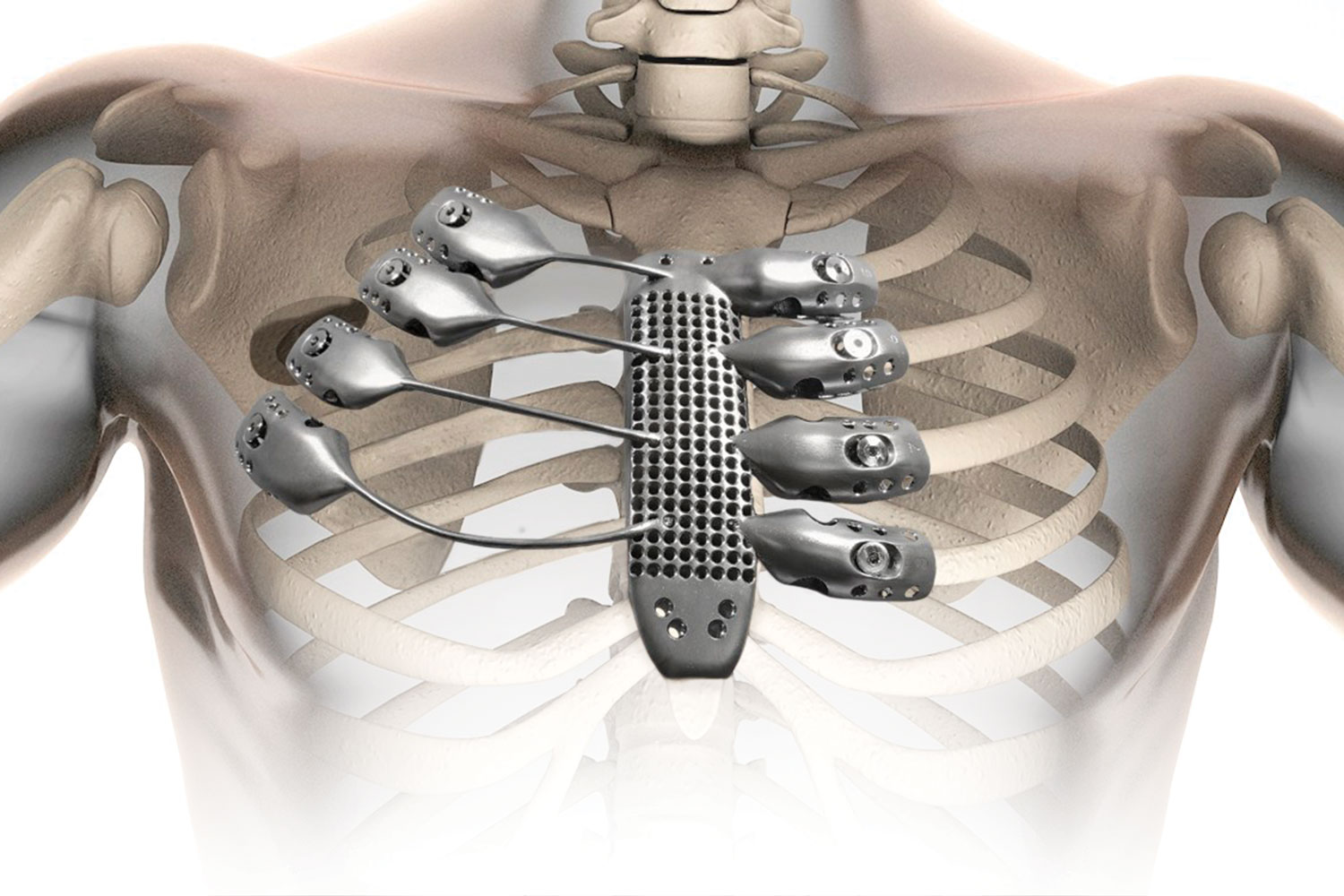 A 3D-printed rib cage and sternum